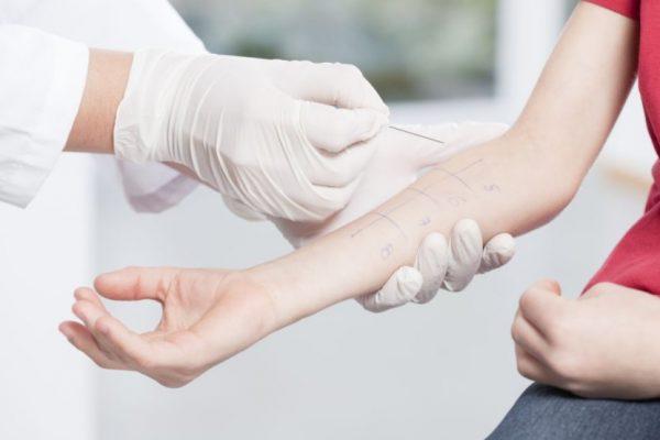 testy alergiczne z krwi